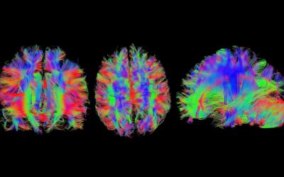 Isteria e neuropsicologia